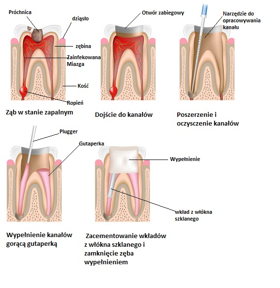 Root canal treatment, non-labeled